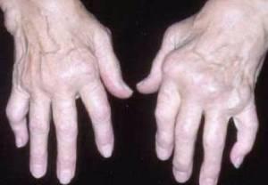 Ревматоидный артрит-лечение народными средствами