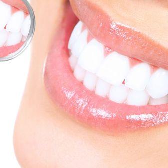 Домашнее отбеливание зубов может экономить средства
