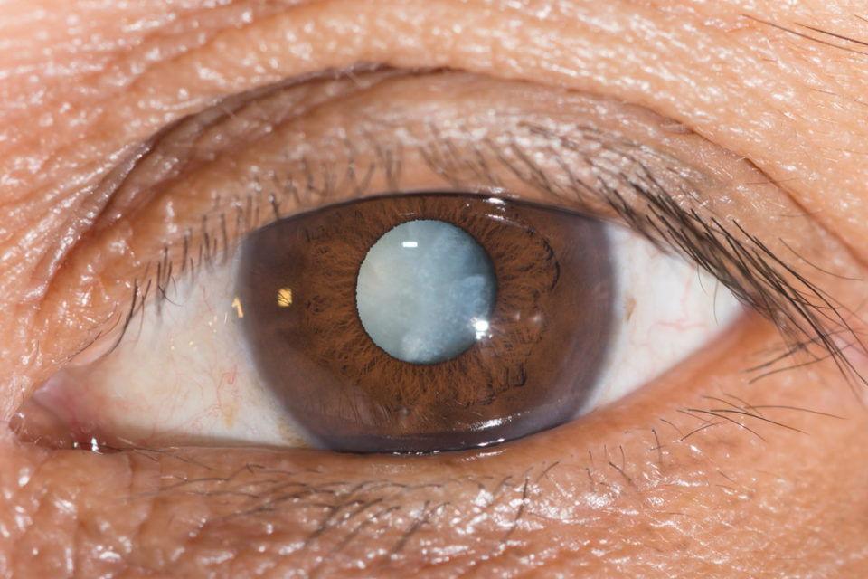 Лечение катаракты заменой хрусталика