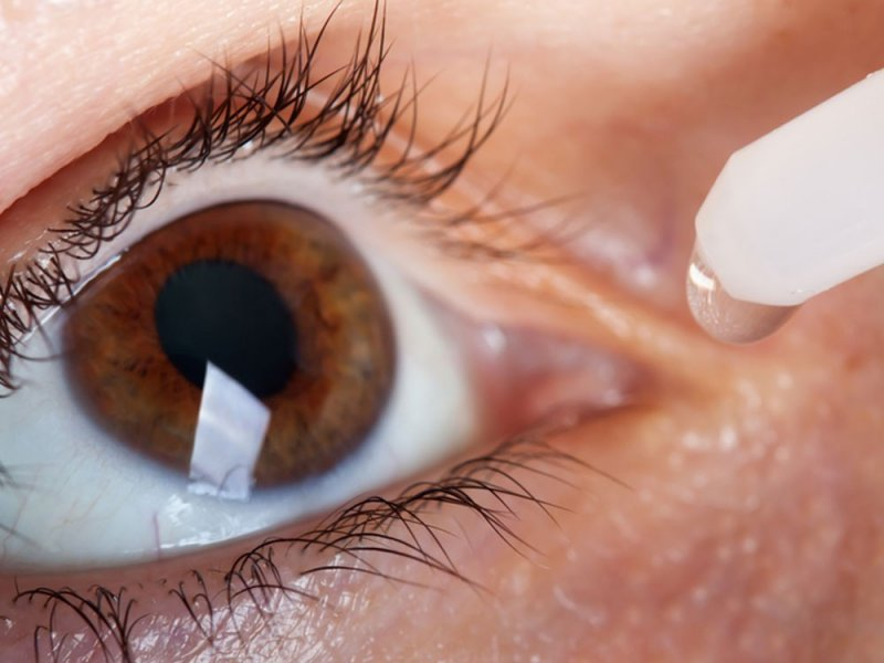 Синдром сухого глаза или конъюнктивит?