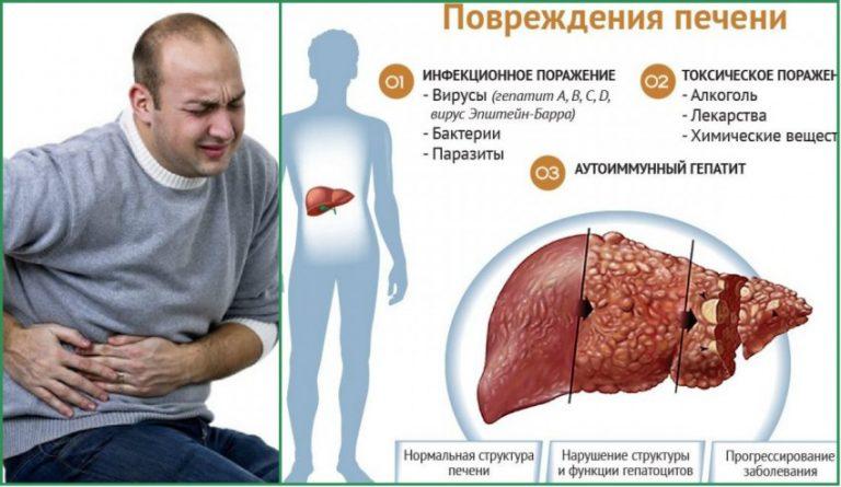 Гепатит и цирроз печени