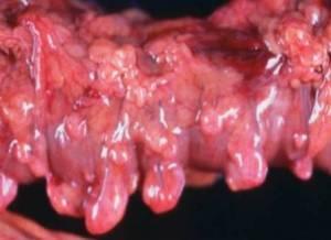 Дивертикулез кишечника лечение