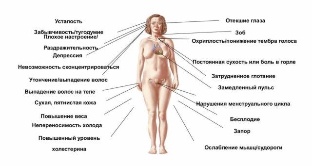 Лечение гипотиреоза: питание, народные средства