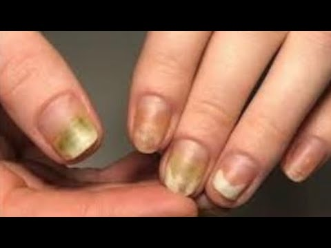 Лечение онихомикоза