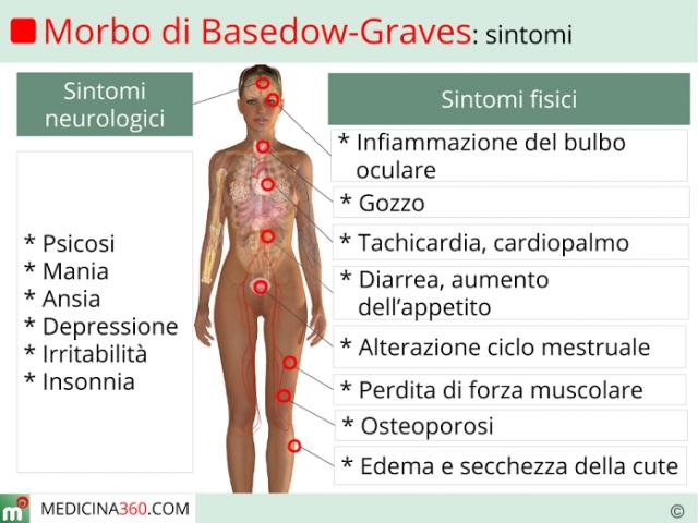 Болезнь Грейвса - симптомы и лечение