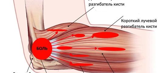 Лечение «теннисного» локтя