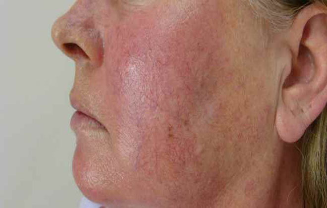 Купероз на лице: причины и лечение
